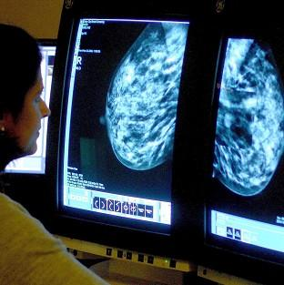 Some 36% of breast cancer patients will die from their disease by 2020, down from 61% in 1992, research suggests
