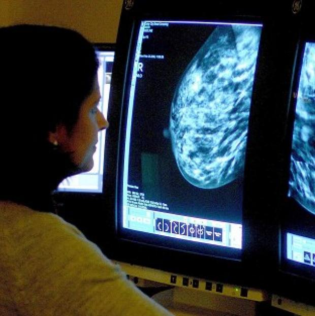 Herald Series: Professor Mark Lawler said a high proportion of older women with a certain form of breast cancer receive less chemotherapy than their younger counterparts