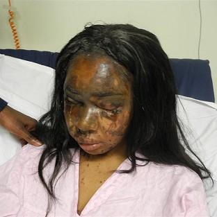 Naomi Oni, who was scarred for life in an acid attack, has accused police of incompetence over the inv